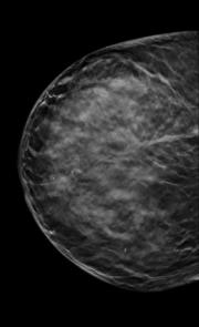 mammographie-principe